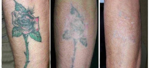 Удалить татуировку недорого